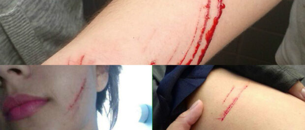 Some of the injuries sustained by students at Mendes do Moraes during the week of attacks